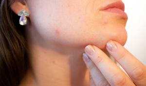 Acne Skin Treatments