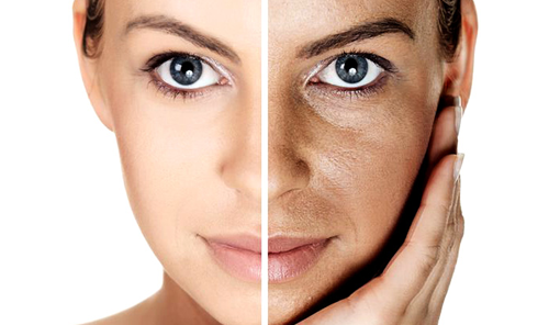 Get Rid of Brown Spots on the Face